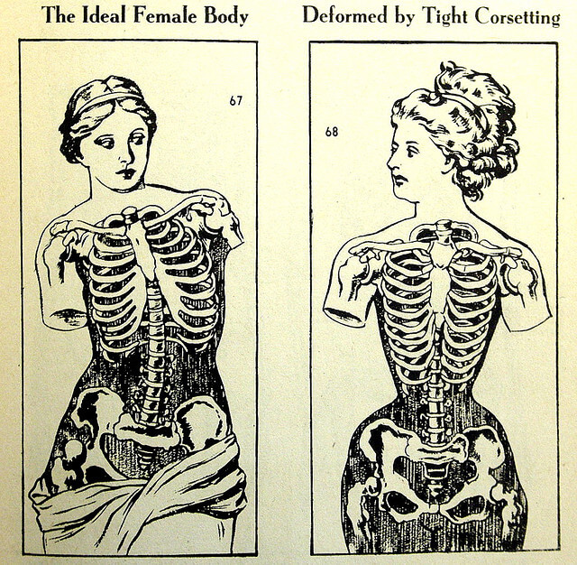 "A vintage illustration illustrating a rib cage ""deformed by tight corseting."""